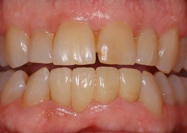 Picture of teeth after Bridge work is done