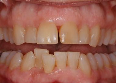 Picture of teeth before Crown work is done