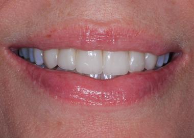 Picture of teeth after Cosmetic Dentistry
