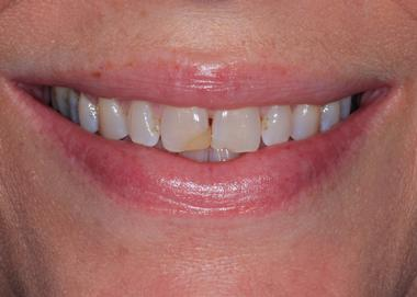 Picture of teeth before Cosmetic Dentistry